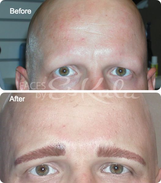 West Palm Beach Alopecia Tattoo 561 755 5575 Permanent Makeup