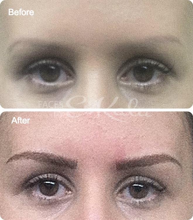 WPB Microblading Eyebrows | (561) -755-5575 Eyebrow Tattoo